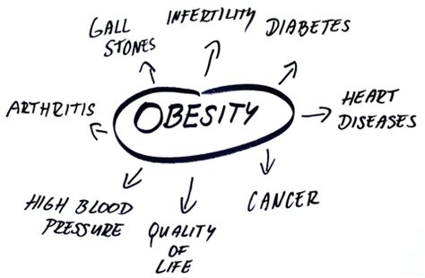 Childhood obesity research paper Essay Example for Free